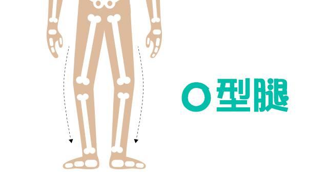 腿型漸漸變成O型腿
